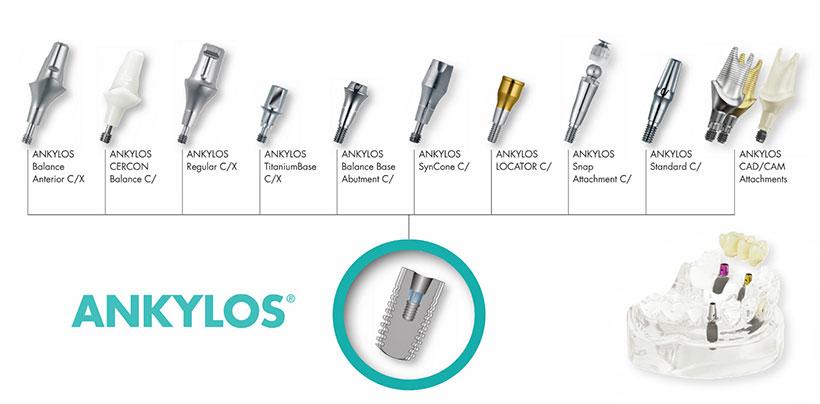 Имплантация зубов анкилоз