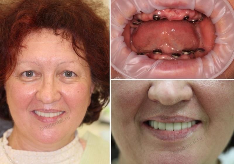 имплантация челюсти при полном отсутствии зубов