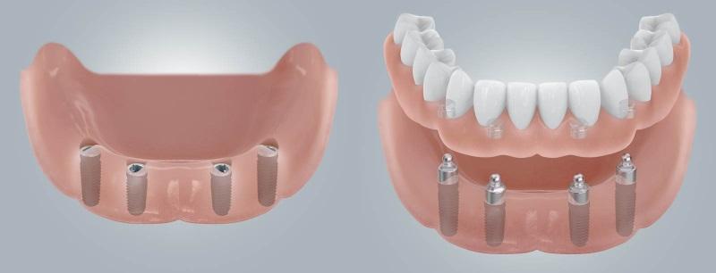 съемная челюсть на имплантах
