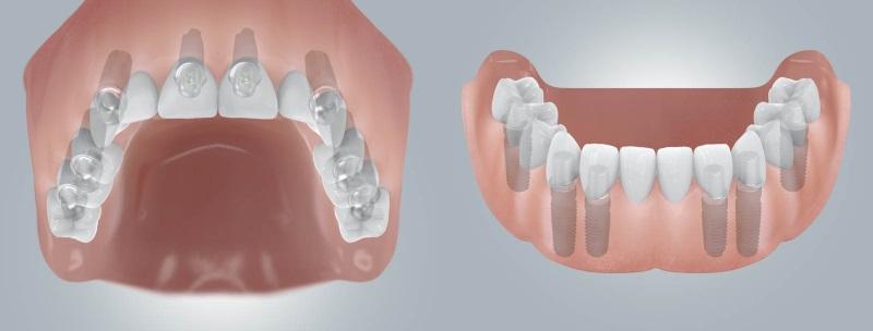 Несъёмный протез челюсти на имплантах