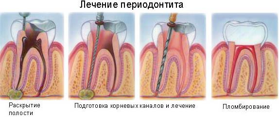 Лечение зубов и беременность. О чем важно знать и помнить.