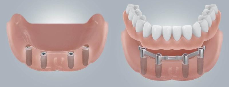 Съёмный протез челюсти на имплантах